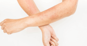 fungal skin infection cream