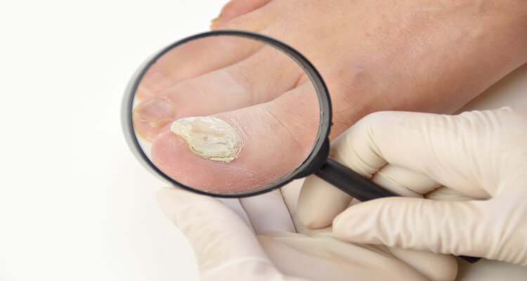 Fungal Nail Infection Can Be Dangerous For Your Health
