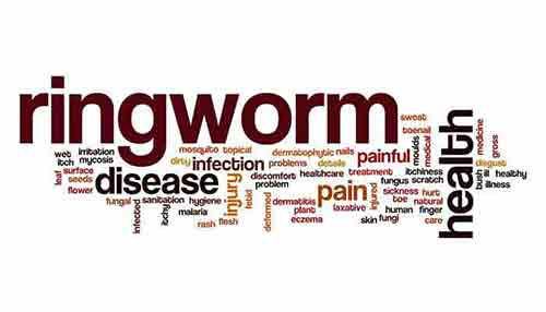 How long does Ringworm remain Contagious after Onset of Treatment?