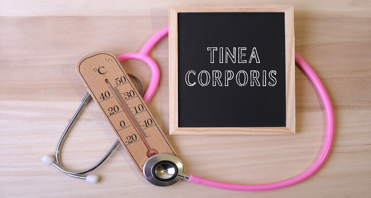 What is Tinea Corporis? How to Treat it?