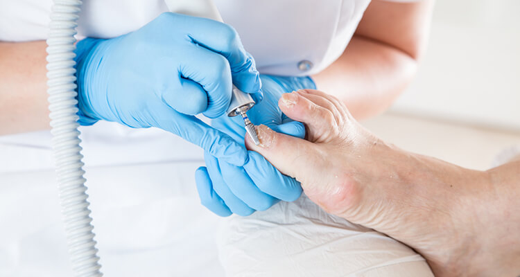 Why Winter is the Perfect Time to Treat Toenail Fungus?